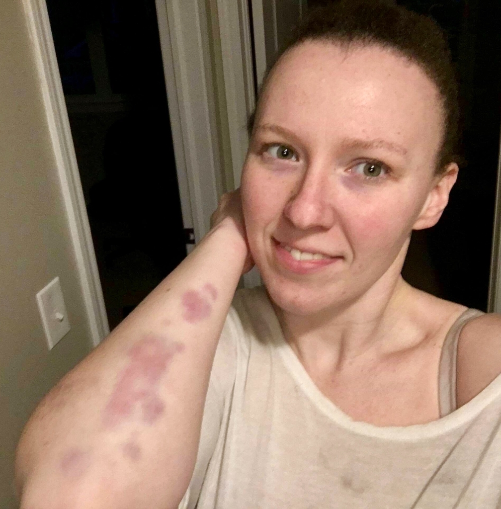 Martial arts and bruising